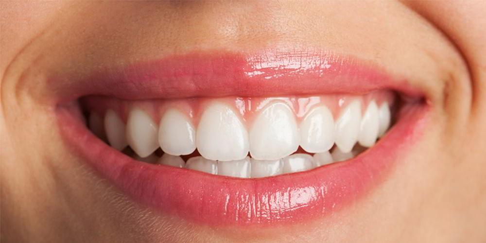 dentist constanta, albire dentara