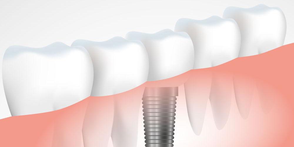 dentist constanta, cabinet stomatologic implantologie