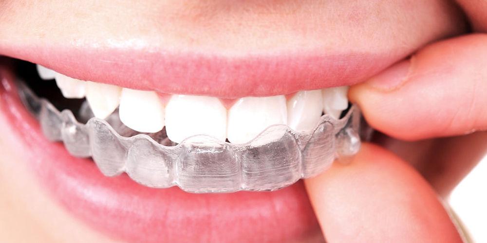dentist constanta, cabinet stomatologic aparat dentar invisalign