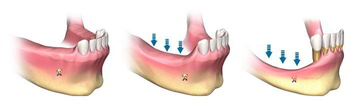 nicodent implanturi dentare