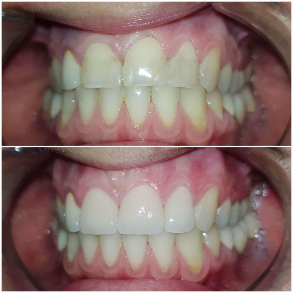 Coroane din ceramica pe suport de zirconiu pe dintii frontali superiori