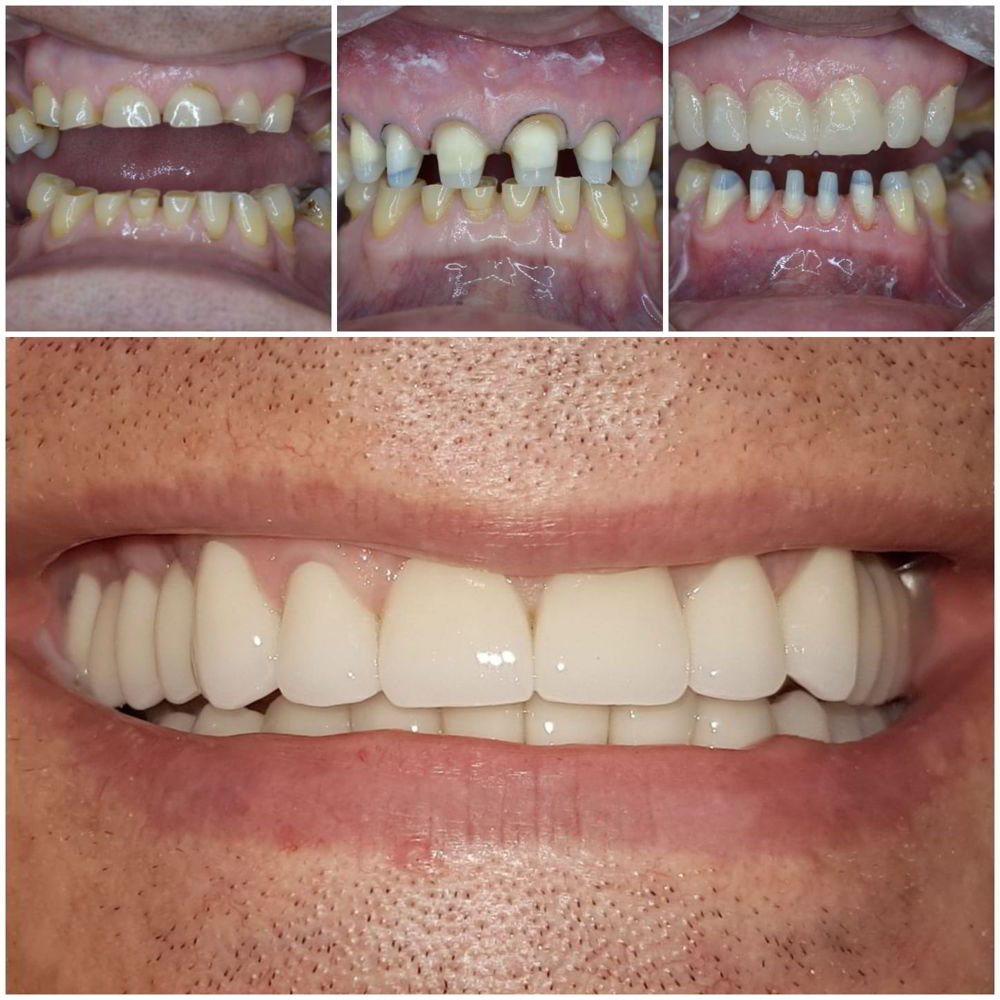 Coroane din ceramica pe suport de zirconiu atat pe dinti cat si pe implante